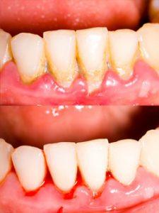 Before and after of gum disease and cleanings